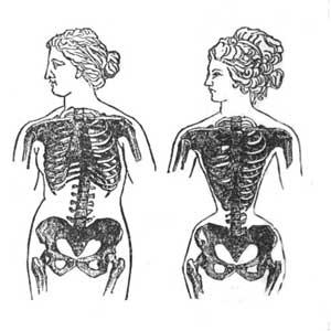 effect-of-corsets-1.jpgWEB